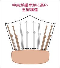 Point3 頭皮にぴったりフィットする特許取得の頭皮密着設計 中央が緩やかに高い 王冠構造